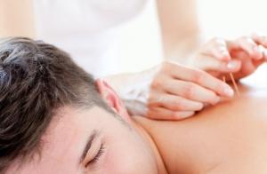 Sesión de acupuntura y vacuumterapia