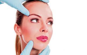 LÁSER: elimina las venitas de la cara